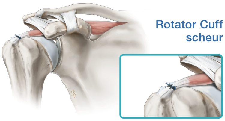 tekening-rotatorcuff-scheur-detail1
