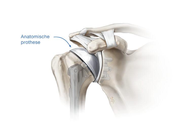 anatomische-prothese1a