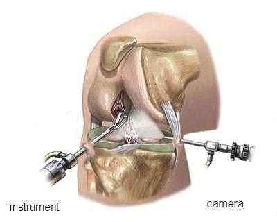 artroscopie-knie